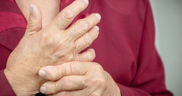 woman massages her own hand _ rheumatoid arthritis