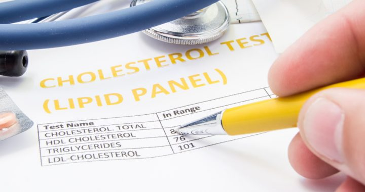 printout of total cholesterol numbers